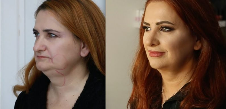 Financing Of Cosmetic Surgery How Much It Can Cost You